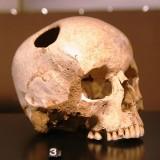 Trepanning: skull with hole